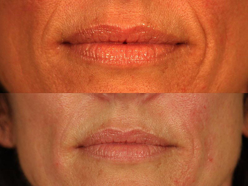 santa-barbara-dermal-fillers-2
