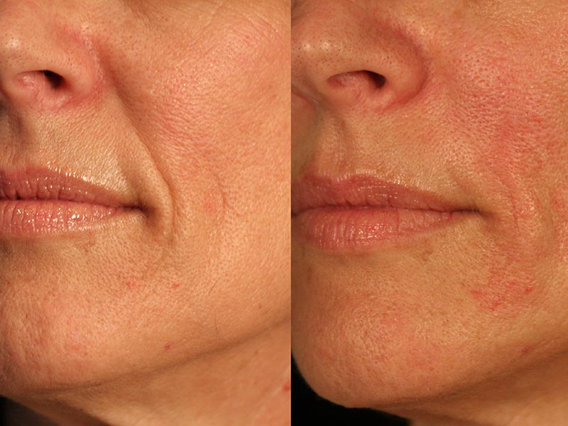 santa-barbara-dermal-fillers-3
