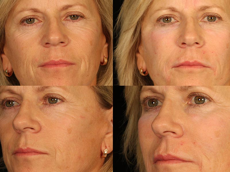 santa-barbara-dermal-fillers-5