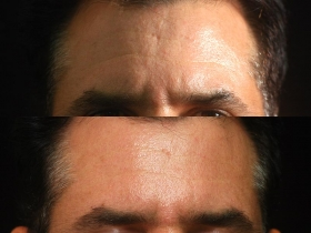santa-barbara-dermal-fillers-1