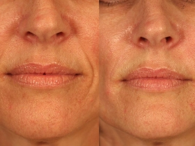 santa-barbara-dermal-fillers-4