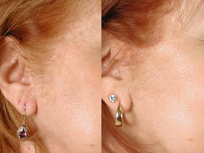 procedure earring hole repair plastic view cost larger surgical single earlobes copper l can chrome handle earrings heecie minute ripped