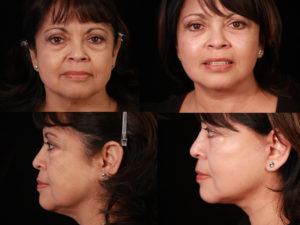 A natural cheek, neck and eyelift restored Anna's youthful appearance.