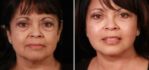 Santa Barbara Necklift and Eyelid Surgery Patient